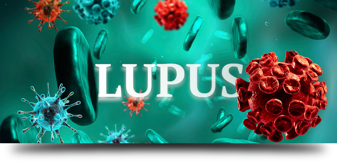 lupus-treatment-with-stem-cells