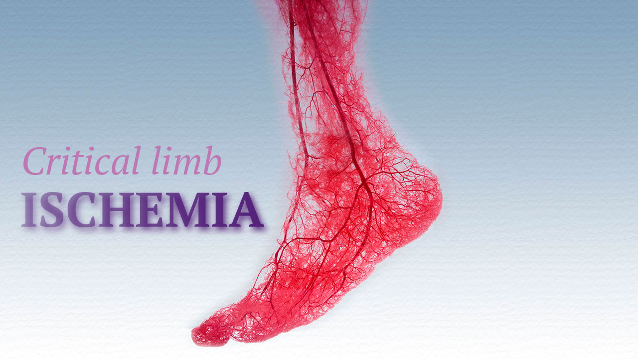 Critical Limb Ischemia Treatment With Stem Cells Blood