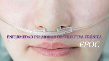 epoc-tratamiento-con-celulas-madre-1280x720