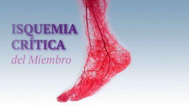 isquemia-critica-del-miembro-tratamiento-con-celulas-madre-1280x720