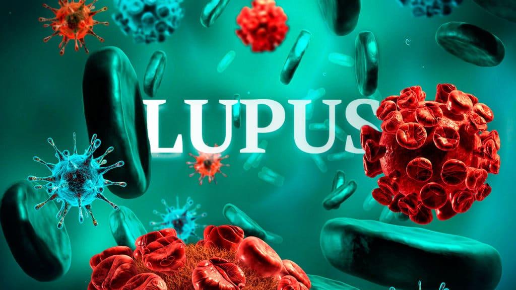 Lupus Stem Cells Treatment Therapy Autoimmune Kidney