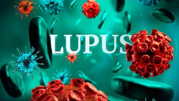 lupus-tratamiento-con-celulas-madre-1280x720