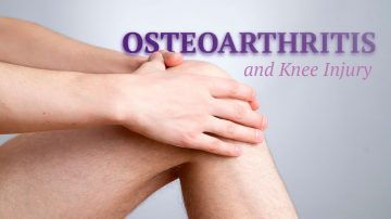 osteoarthritis-treatment-with-stem-cells-1280x720