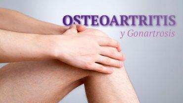 osteoartritis-tratamiento-con-celulas-madre-1280x720