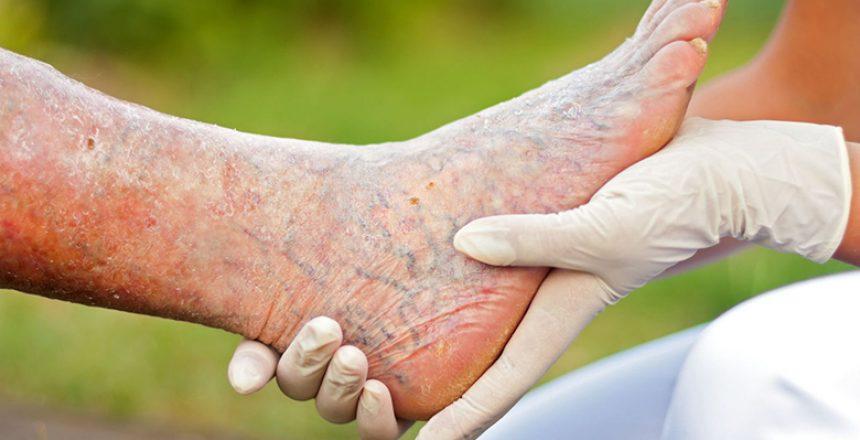 Critical-Limb-Ischemia